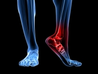 There Are Several Reasons Why Heel Pain May Occur