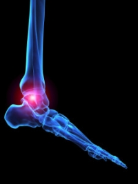 What Are the Symptoms of Arthritic Feet?