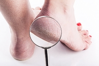 Can Medical Conditions Cause Cracked Heels?