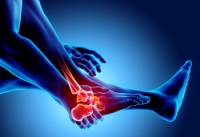 Early Signs of Arthritis in Feet