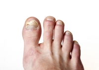 Possible Causes of Toenail Fungus